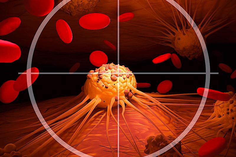 Подход к лечению рака ультразвуком